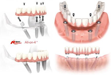 implant-drhung-allon